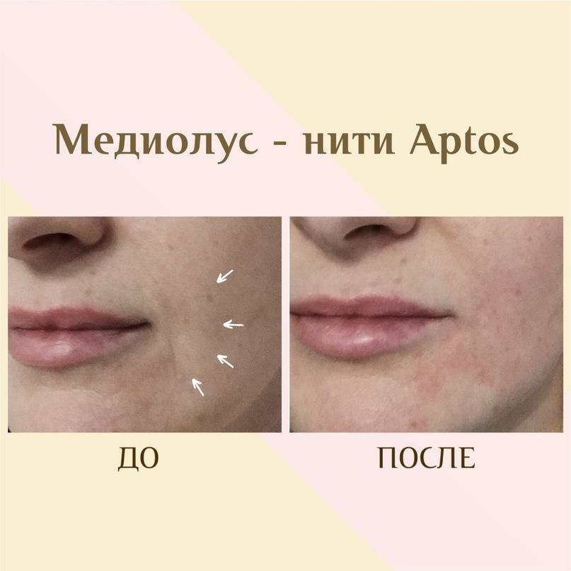 Губы и область вокруг рта., изображение №4