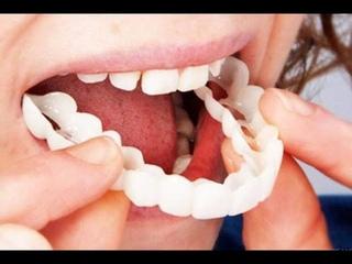 Накладные зубы