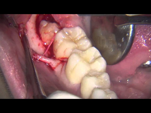 Estrazione dente del giudizio Lower third molar extraction piezosurgery