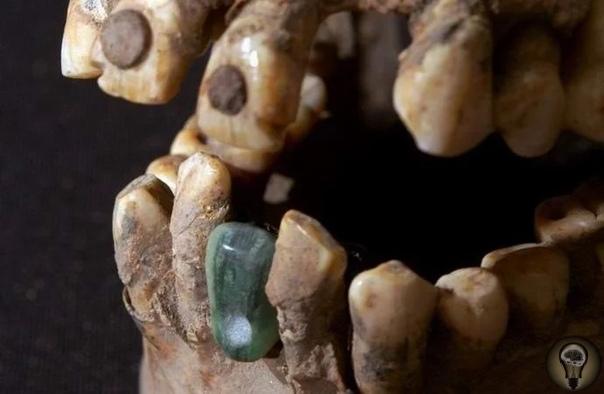 Древний череп с протезами нашли в мексиканской пирамиде