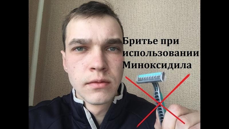 Бритье При использовании Миноксидила Как Бриться с Миноксидилом