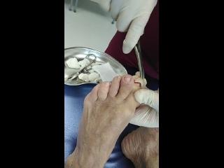 операция по удалению ногтевой пластины,вросший ноготь
