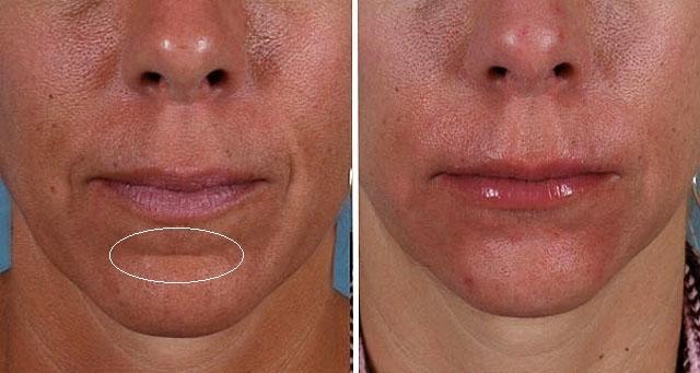 Губы и область вокруг рта., изображение №16
